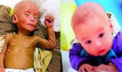Em bé biến thành cụ già và chết sau khi tiêm văcxin