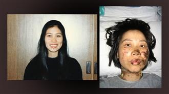 Chị Cao Dung Dung trước và sau khi bị tra tấn bằng dùi cui điện