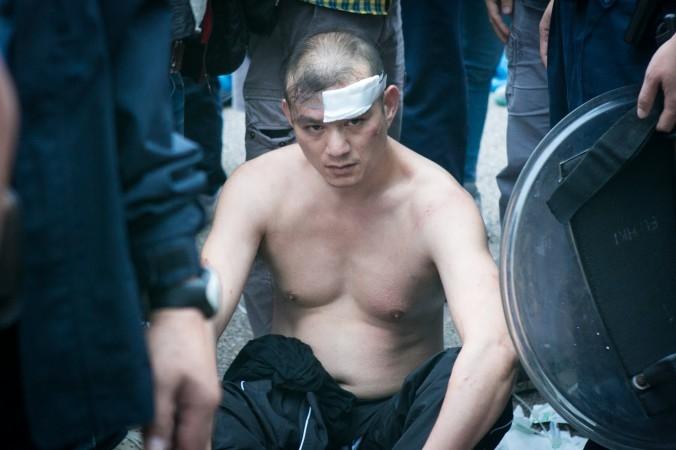Người đàn ông chống biểu tình, ném nội tạng thối vào ông Jimmy Lai bị thương nhẹ ở đầu do xô xát. (Benjamin Chasteen/Epoch Times)