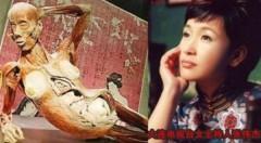 Bộ xương người có nhiều nét giống nữ MC Trương Vĩ Kiệt