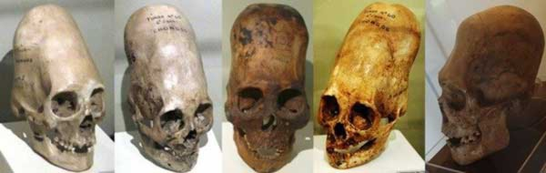 Hộp sọ bí ẩn Paracas không phải ADN của người